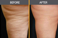 Cellulite Reduction in Chicago