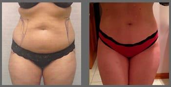liposucción antes y despues