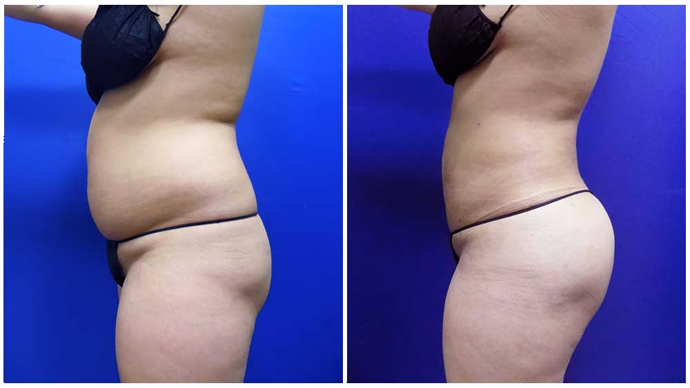 Waterlipo™ for Fat Removal