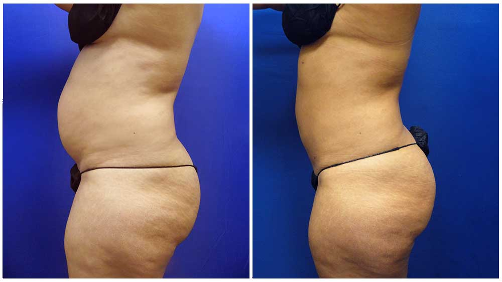 (Water-Jet Assisted Liposuction)