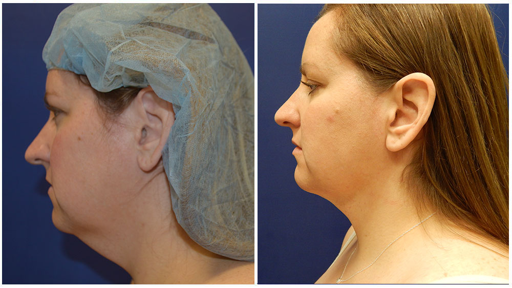 Double Chin Liposuction Before & After