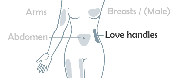 Flank love handle liposuction