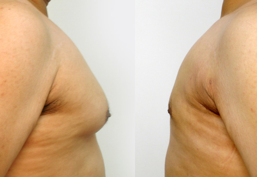 Male liposuction - gynecomastia correction