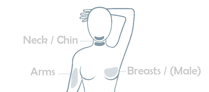lipo areas - neck chin