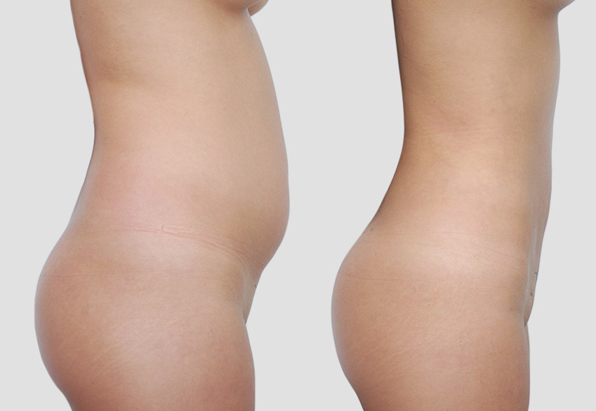 Liposuction of the Abdomen - Female patient