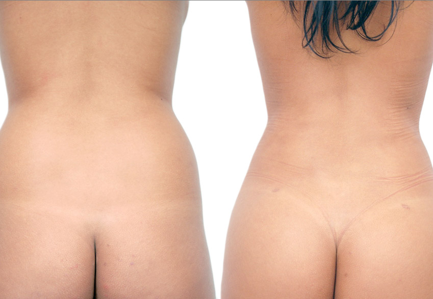 back liposuction patient