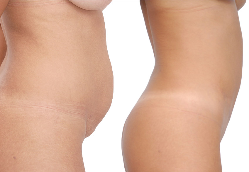 Tumescent Lipo Patient - female 29 years - before (left) - 12 weeks after (right)