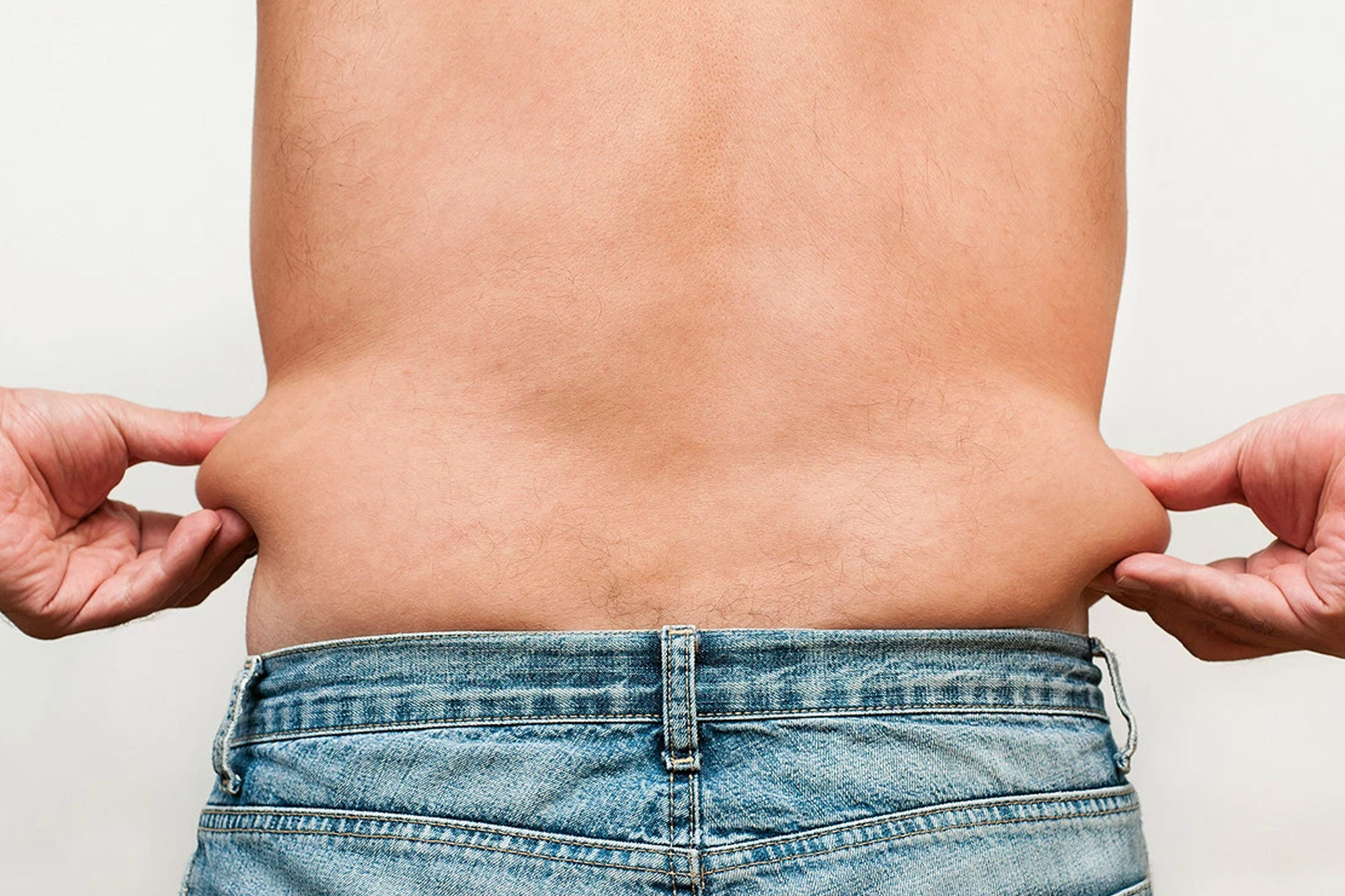 Male Liposuction - Tumescent alternative