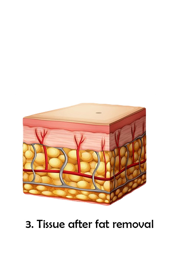Tissue after fat removal