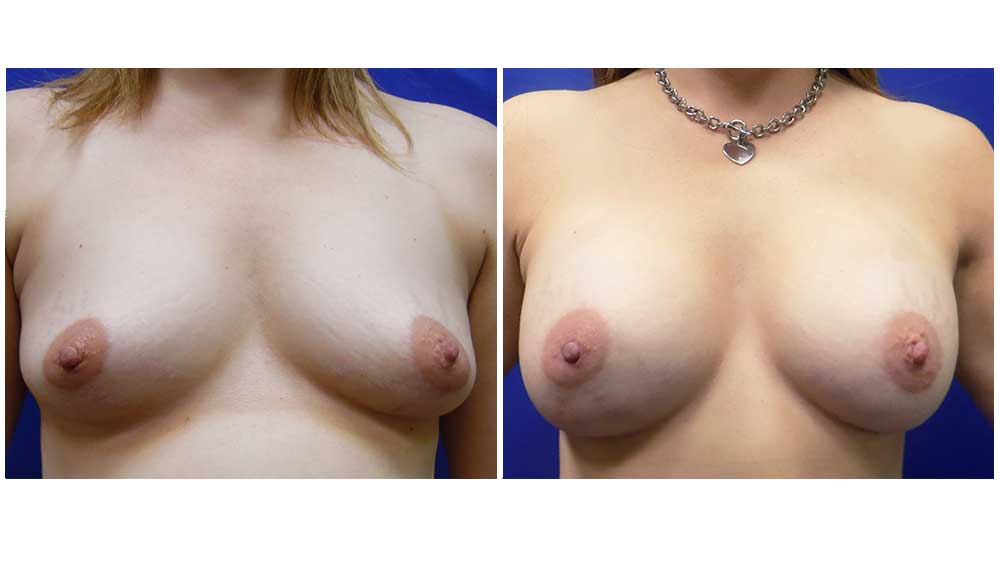 Breast Lifts