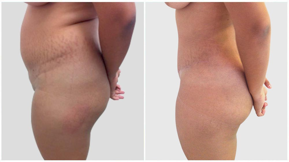Abdominal/Tummy Liposuction