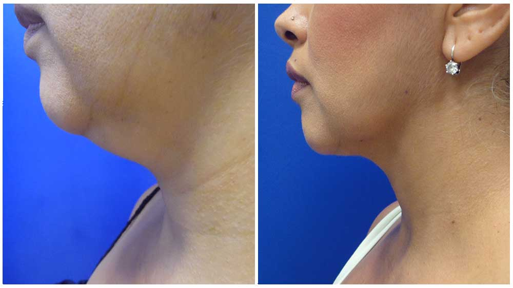 chin Liposuction Before & After