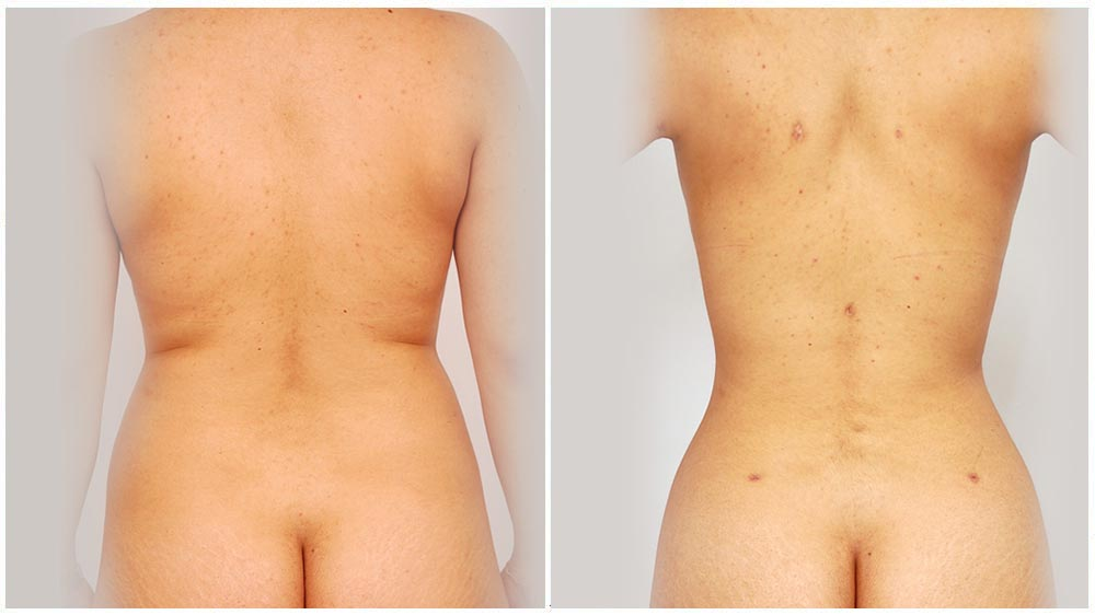 Back Liposuction