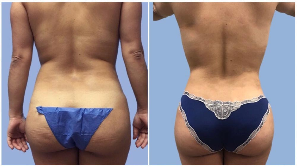 Hip & Buttocks Liposuction