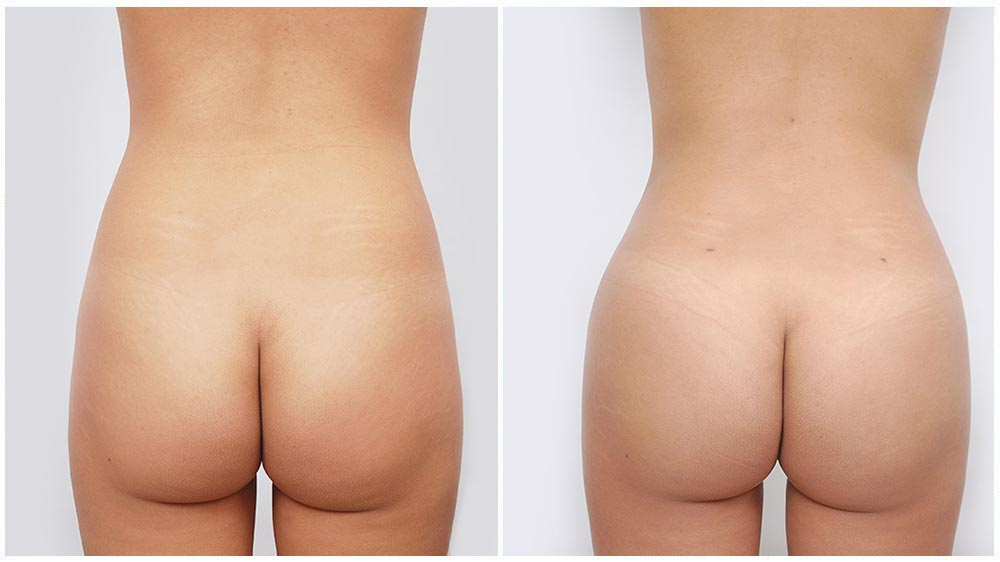 Buttocks and thighs liposuction