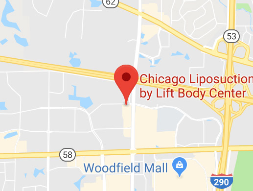 Chicago Liposuction by Lift Body Center Map