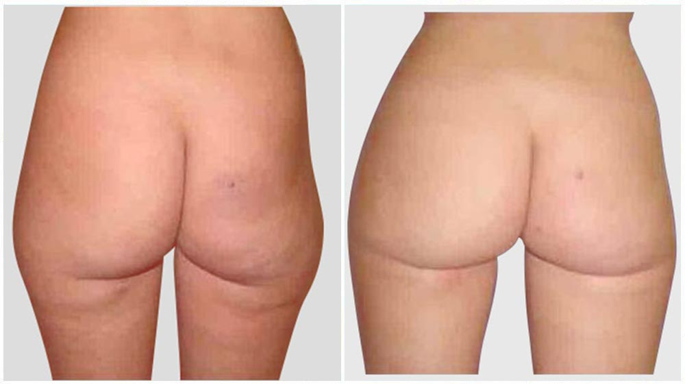 Liposuction of the Thighs/Legs