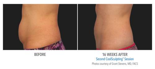 Coolsculpting in Chicago