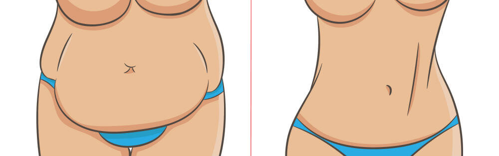 Liposuction vs. Tummy Tuck